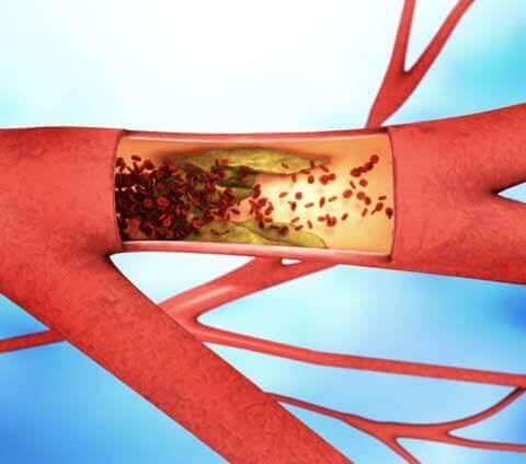 Abb.: Ablagerung und Verengung einer Aterie – Arteriosklerose – © Christoph Burgstedt – AdobeStock ®